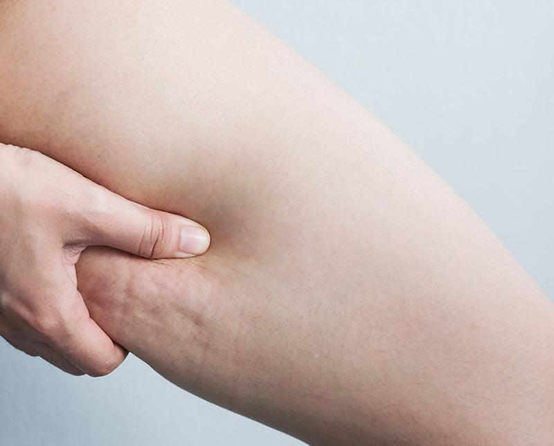 Cellulite Treatment Wellington