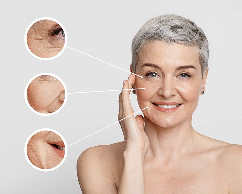 Wrinkles Reduction Wellington